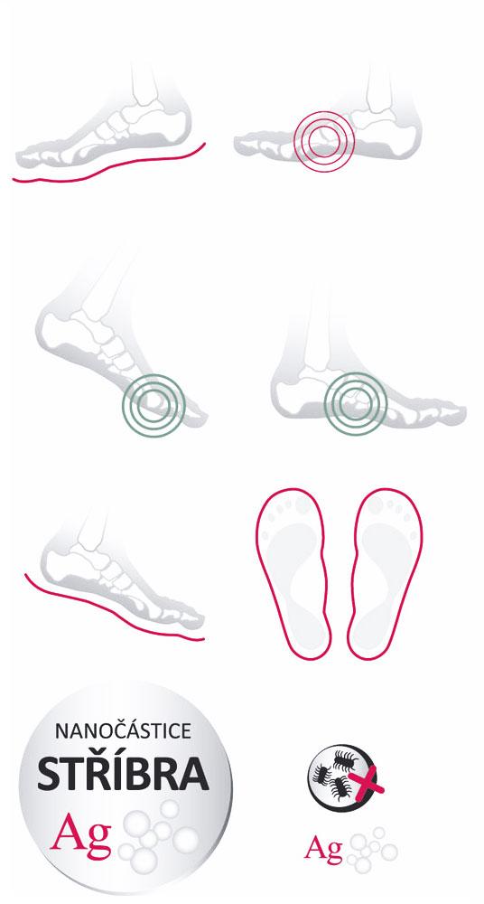 Ansicht der Fußunterstützung der »KORKfant« Einlagen
